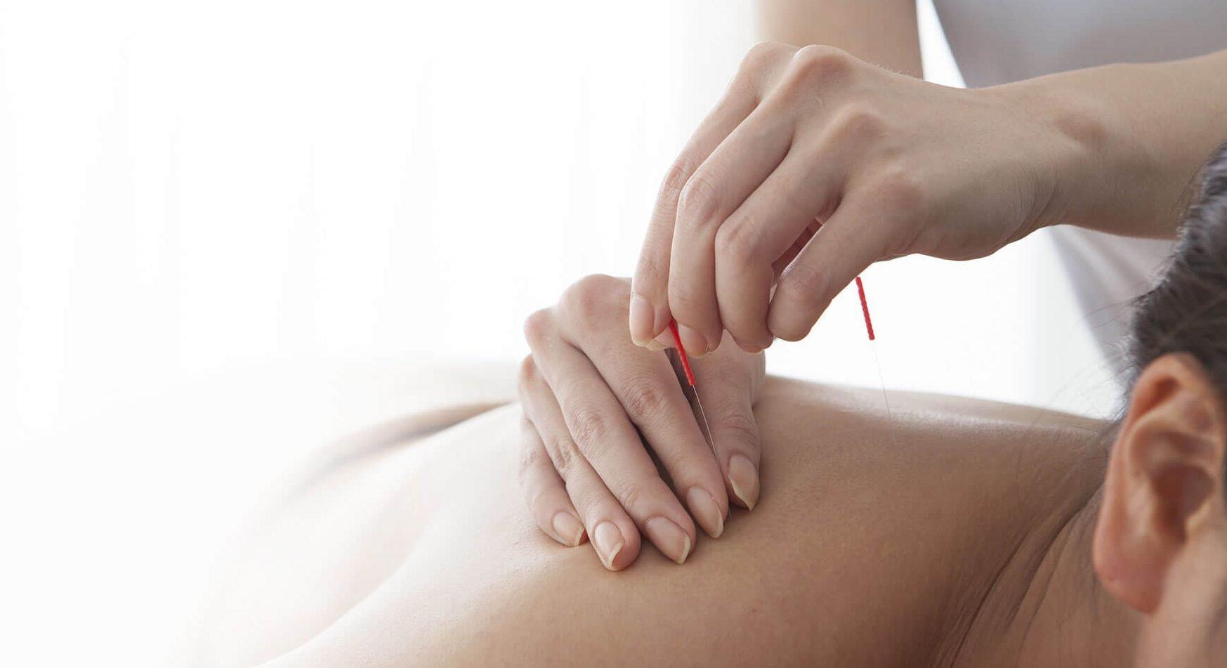 banner-acupunture